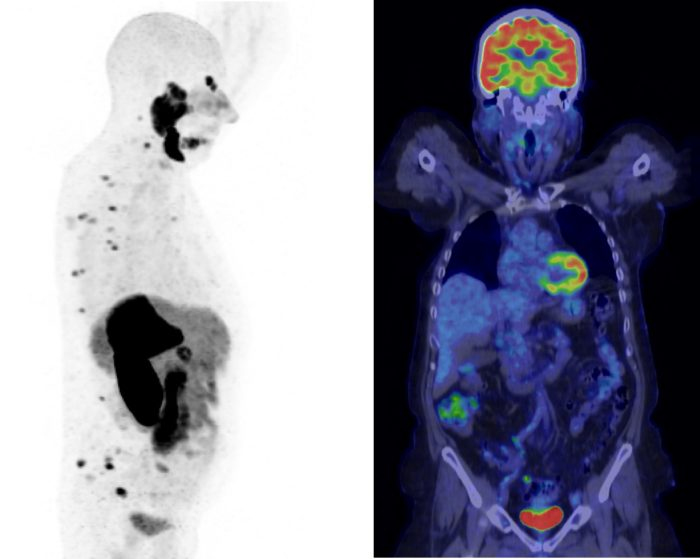 An image of a PET study showing PET data and Fused PET/CT data